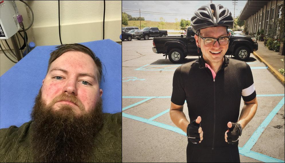 До и после: 10 вдохновляющих фото людей, которые бросили пить водку по утрам (совсем!)