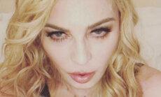 Fanus pārbiedē Madonnas neveselīgais izskats