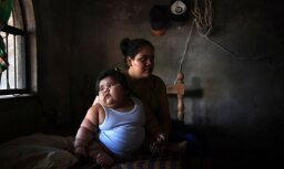 Pasaulē resnākais bēbis – 10 mēnešus vecais Luiss