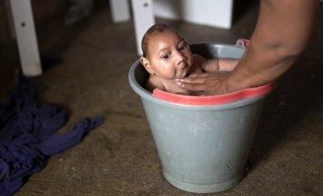 Eiropā piedzimis pirmais mazulis ar Zikas vīrusa izraisīto mikrocefāliju