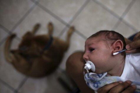 Mazulis, kurš pirms dzimšanas bija inficēts ar Zikas vīrusu