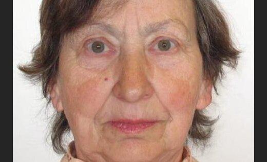 Lūdz palīdzību Ventspilī pazudušas sirmgalves meklēšanā