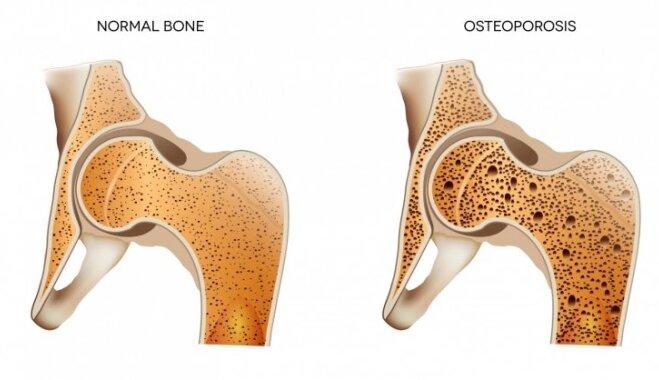 Osteoporozes dēļ kauli var lūzt pat nošķaudoties. Ārsta ieteikumi profilaksei