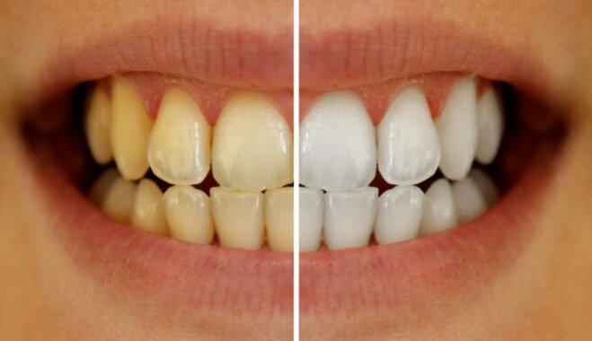 Красивая улыбка: 15 советов стоматолога Виктории Артеменко на каждый день