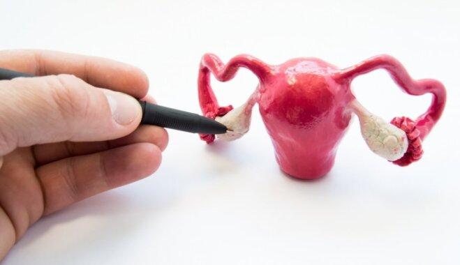 Синдром поликистозных яичников: причины возникновения и методы лечения