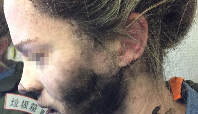 У летевшей в Мельбурн пассажирки взорвались наушники