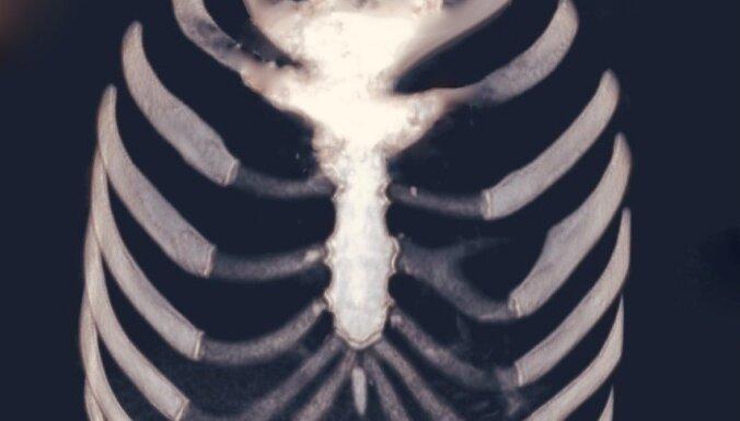 В клинике Страдиня прошла уникальная операция по замене грудной кости c использованием 3D-технологии