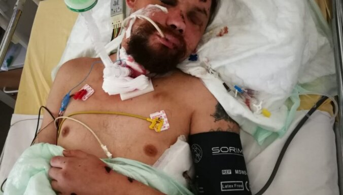 Грузовик сбил в Риге пешехода: полиция просит опознать пострадавшего (ФОТО)