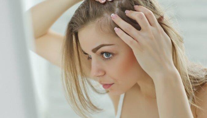 Повышенное выпадение волос от нервов: почему происходит и как с этим бороться