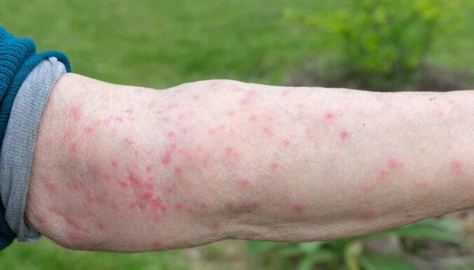 В Земгале массово размножаются гусеницы, вызывающие у людей аллергическую реакцию