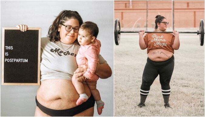 Не надо стесняться. Смелые мамы делятся cнимками, как они выглядят после родов