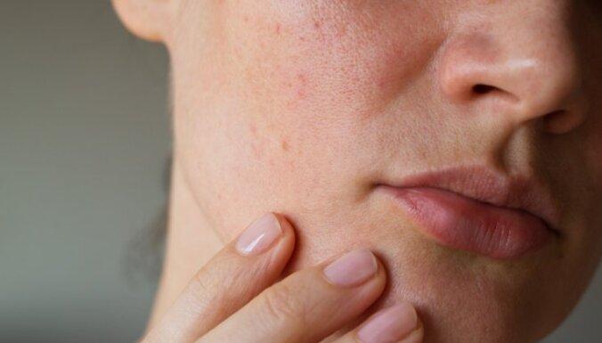 Прыщи, усталость, температура: онкологи назвали начальные симптомы рака