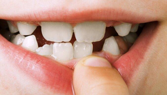 Kādu zobu pastu un zobu suku izvēlēties bērnam