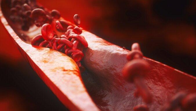Nepatiesi un dzīvībai bīstami uzskati par sirds un asinsvadu slimībām