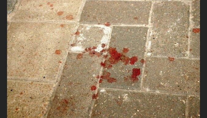 В подъезде обнаружили раненного в живот мужчину: полиция задержала его супругу
