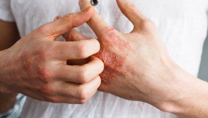 15 jautājumi dermatovenerologam, par ko kautrējamies runāt