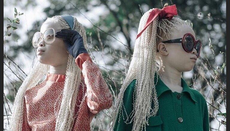 ФОТО. Близняшки-альбиносы покоряют мир моды
