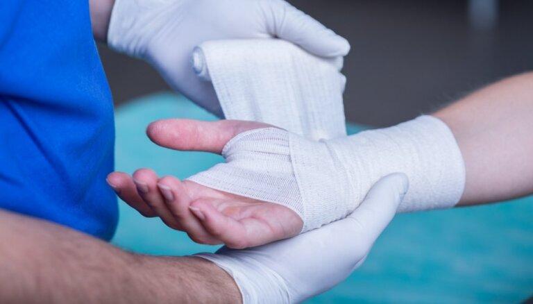 Latvijas ķirurgi piešuj gaterī amputētu plaukstu