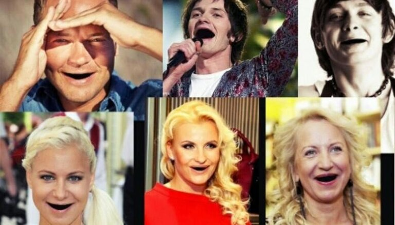 Kā populāri latvieši izskatītos bez zobiem
