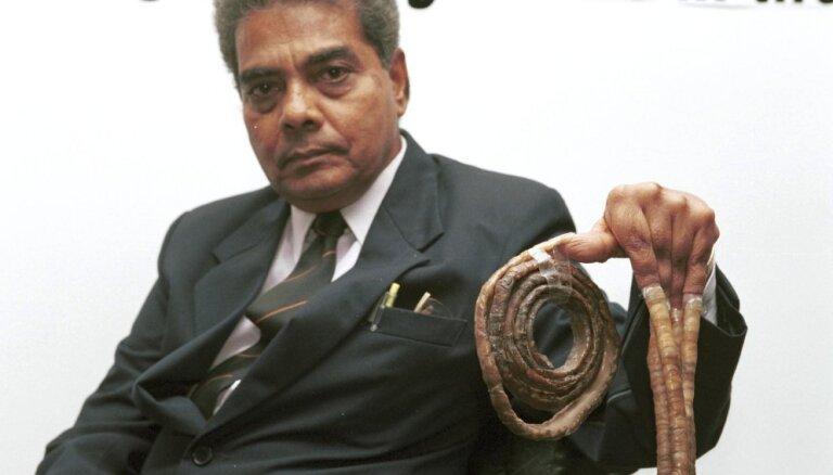 Обладатель самых длинных ногтей в мире отрезал их после 66 лет отращивания