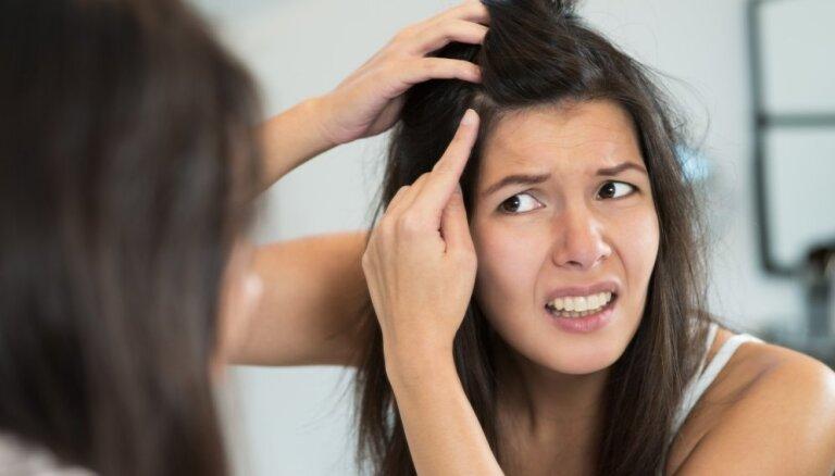 Pirmie sirmie mati. Ko darīt un vai nosirmošanu var aizkavēt