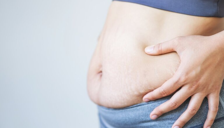 Sievietes ķermenis pēc dzemdībām: ieteikumi formas atgūšanai