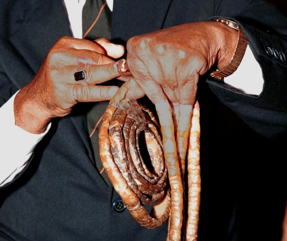Vīrietis 63 gadu laikā izaudzējis 9 metrus garus nagus